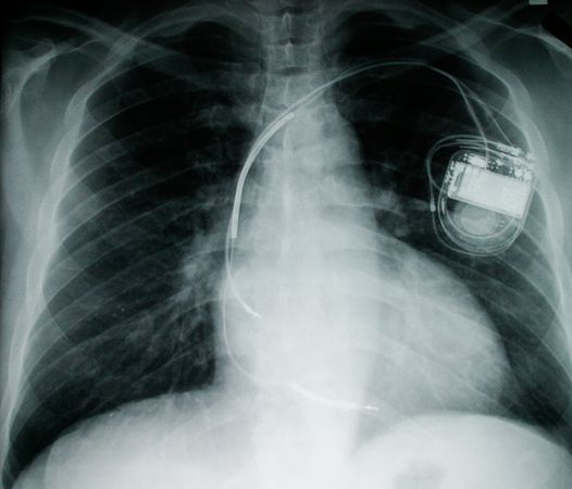 mice-fuel-cells-implants-pacemaker