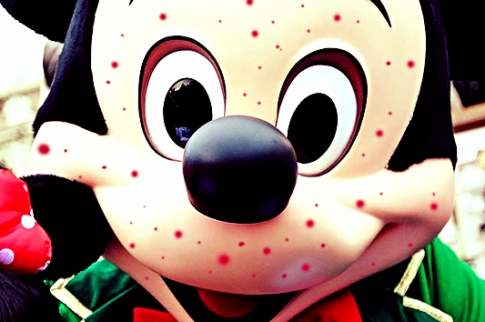 Disney Measles