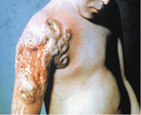 Progressive-Vaccinia-Smallpox-Vaccination-Child-with-Leukemia