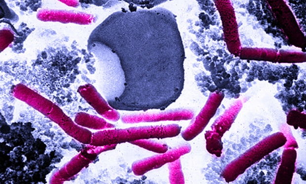 The Pentagon says it accidentally sent live anthrax spores to laboratories