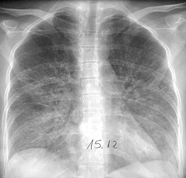 viral-pneumonia