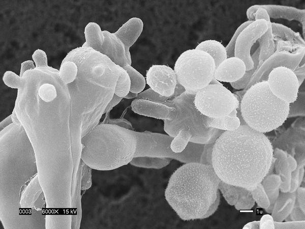 new-killer-airborne-fungus-cryptococcus-gattii
