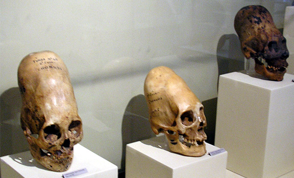 DNA Analysis Of Paracas Elongated Skulls Released. The Results Prove They Were Not Human-2