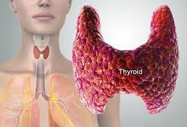 Thyroid-Gland-Hashimoto-Iodine-Selenium