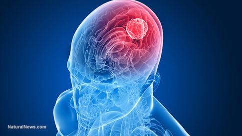 Brain-Cancer