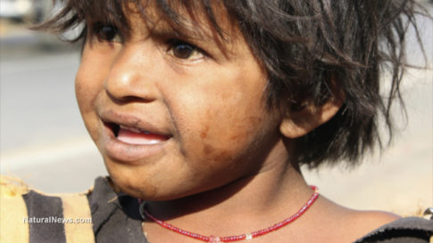 Dirty-Poor-Child-Unkempt-Hair