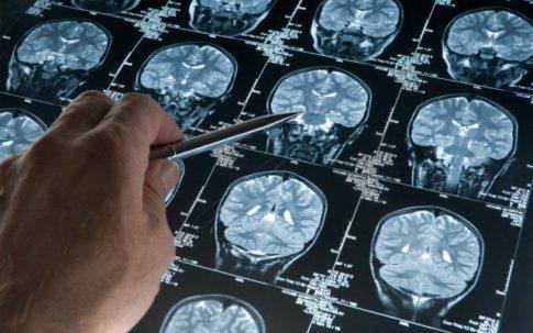 fasting-brain